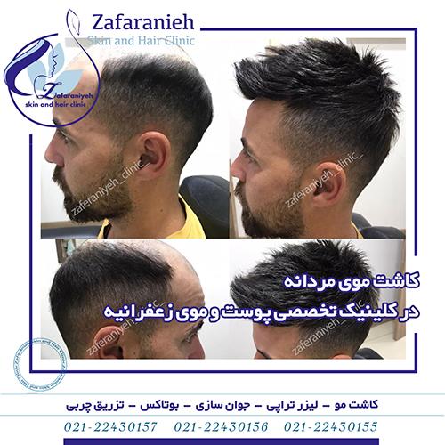 کلینیک تخصصی پوست و موی زعفرانیه