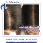 کاشت مو کاشت ابرو