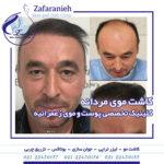 کاشت موی مردانه