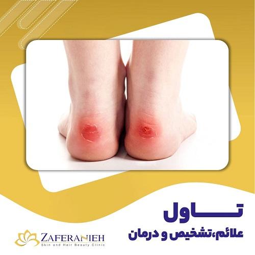 تاول علائم تشخیص و درمان - کلینیک زعفرانیه