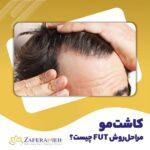 کاشت مو به روش FUT -کلینیک زعفرانیه
