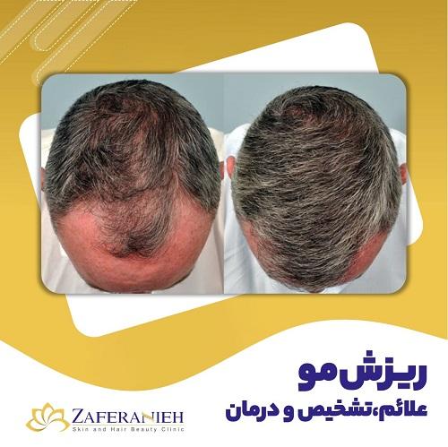 ریزش مو ، علائم تشخیص و درمان - کلینیک زعفرانیه