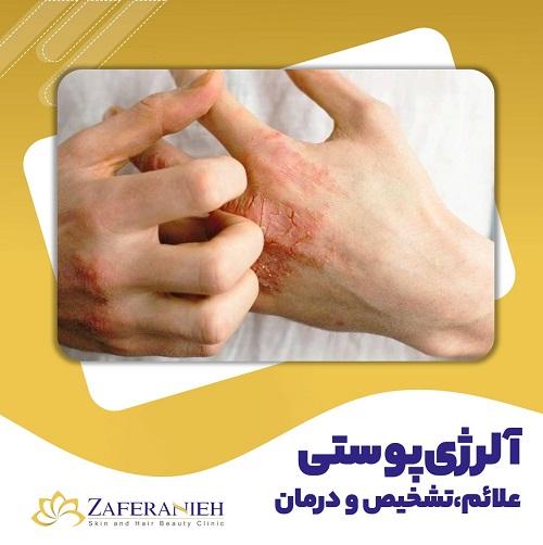 آلرژی پوستی - کلینیک زعفرانیه