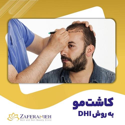 کاشت مو به روش DHI - کلینیک زعفرانیه