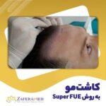 کاشت مو به روش SUPER FUE - کلینیک زعفرانیه