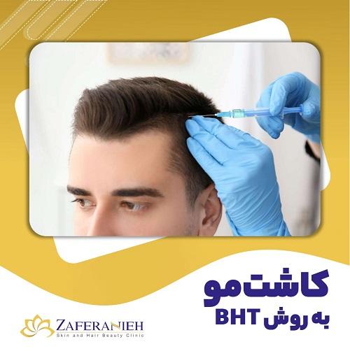 کاشت مو به روش BHT - کلینیک زعفرانیه