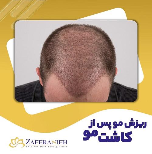 ریزش مو پس از کاشت مو - کلینیک زعفرانیه